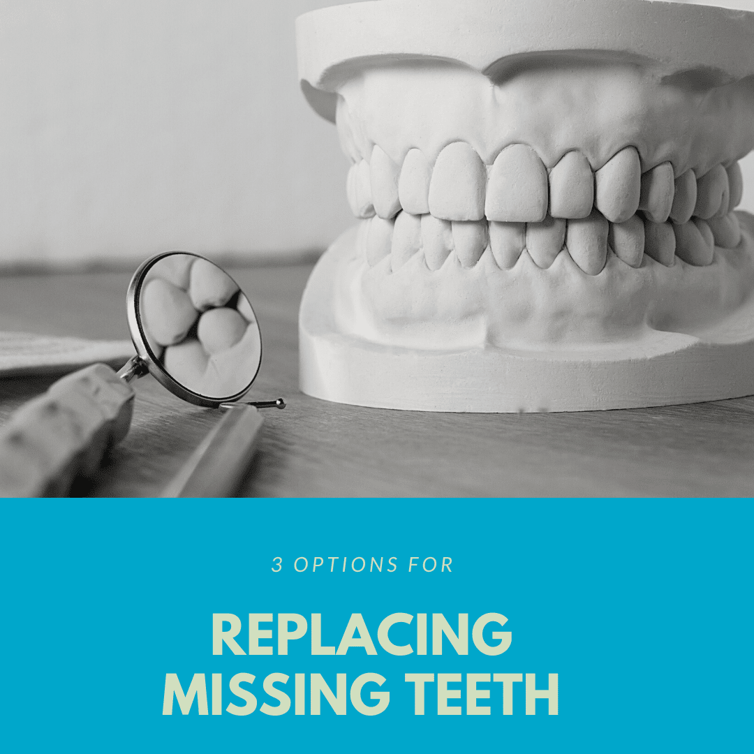 3 Options for Replacing Missing Teeth (1)