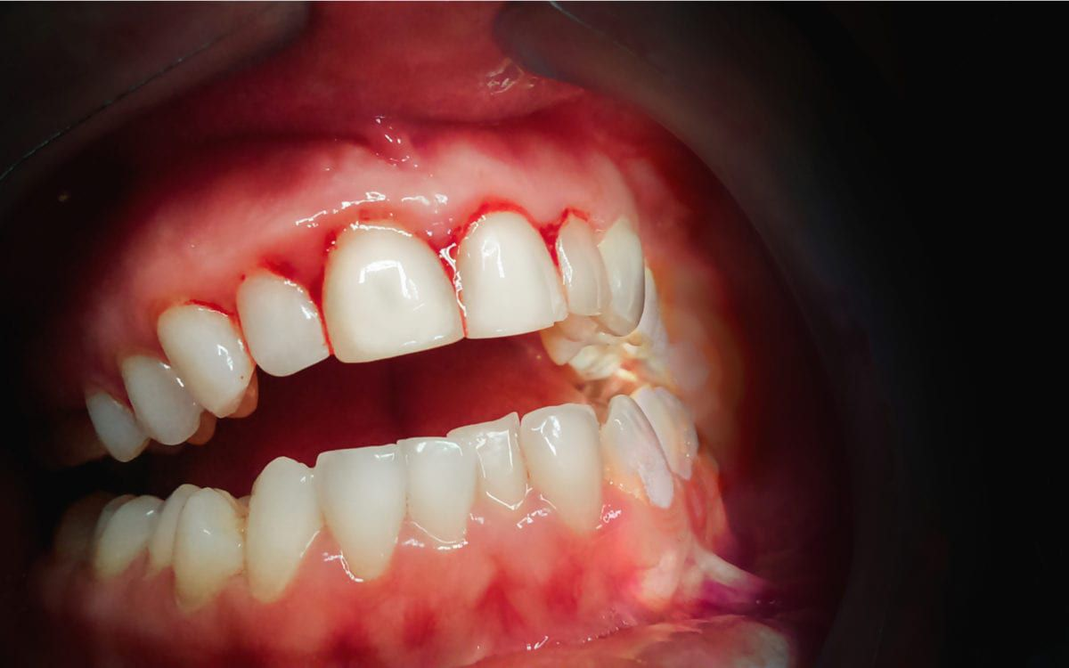 Gums with periodontal disease