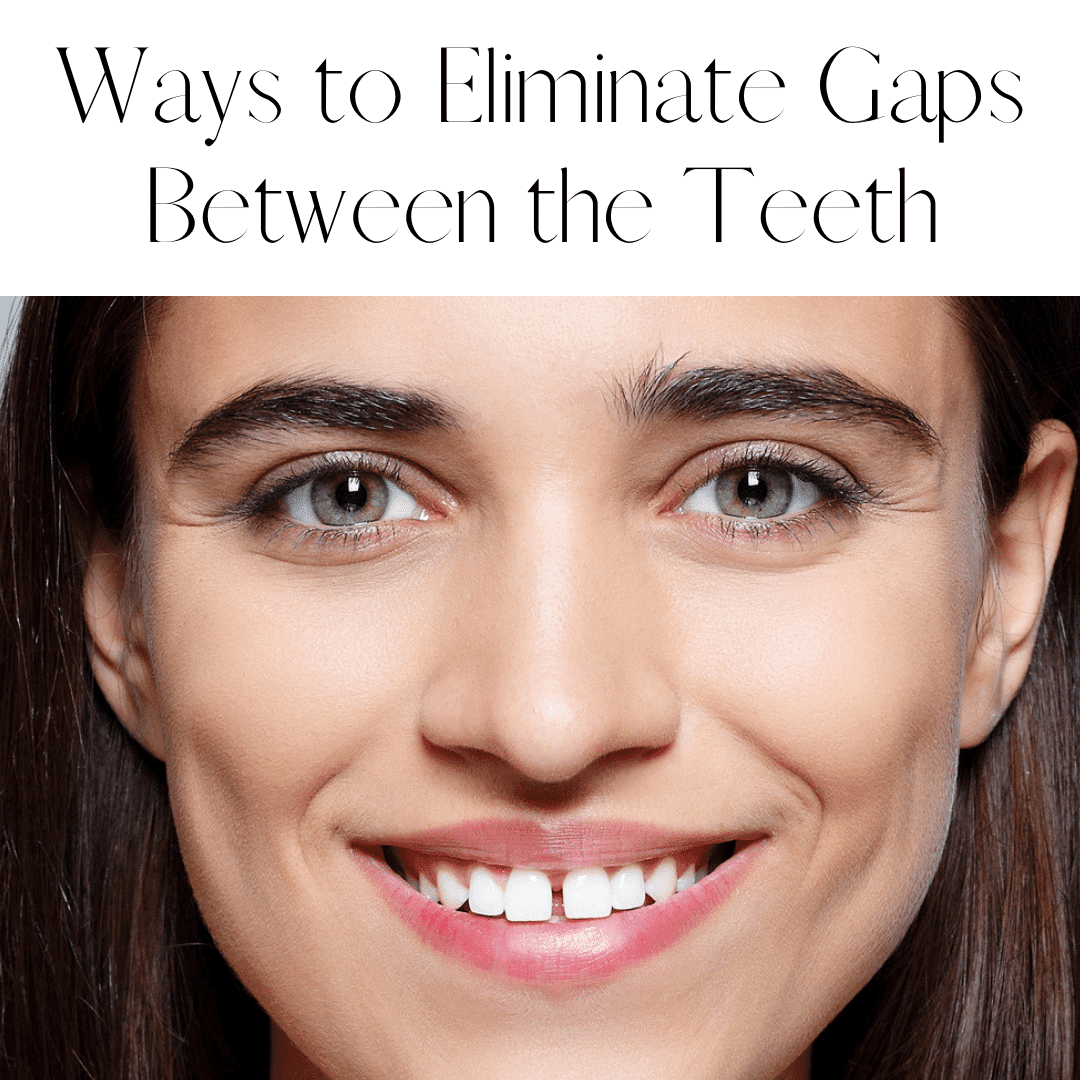 Ways to Eliminate Gaps Between Teeth
