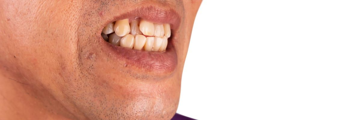 Man with protruding teeth