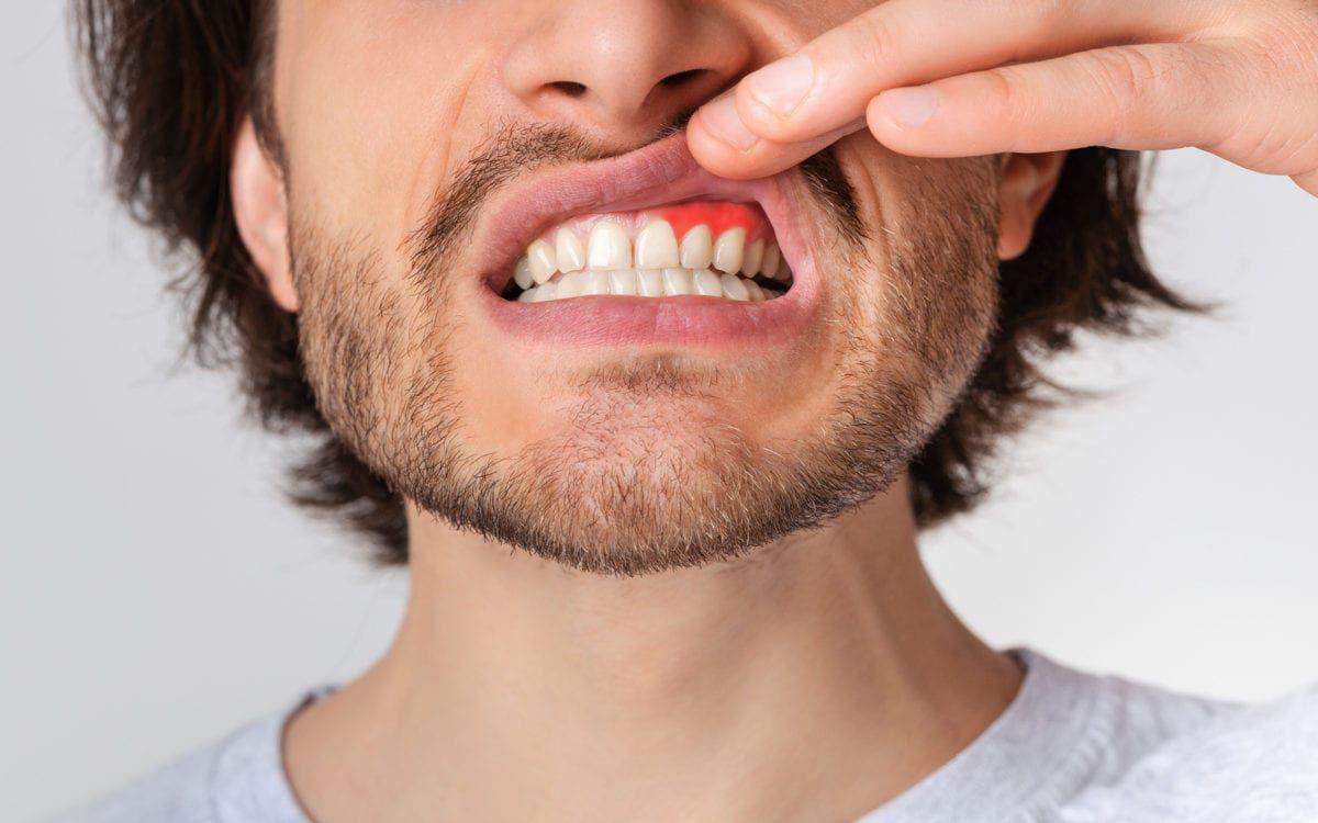 Man baring gums with gum disease