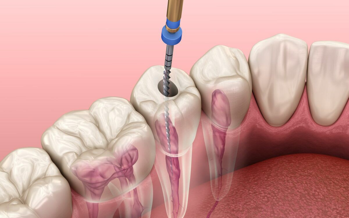 Root Canal Image